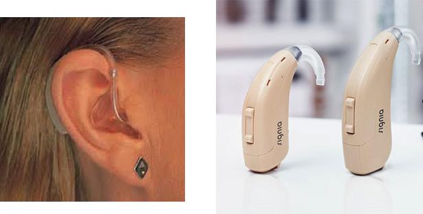 hearing-loss-1